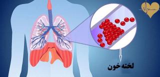 لخته شدن خون در ریه